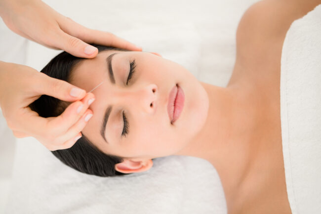 Woman In An Acupuncture Therapy